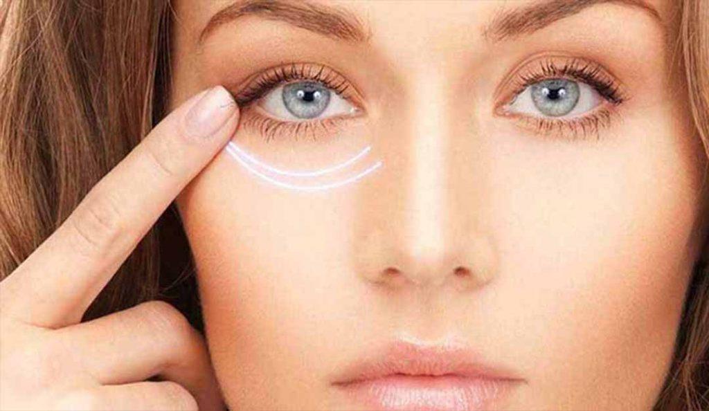 Göz altı morlukları neden olur? (Nasıl geçer?)
