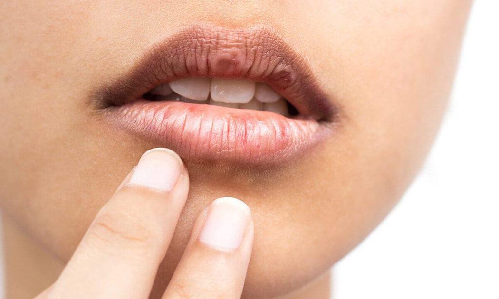 dudak kuruluğuna bitkisel çözümler