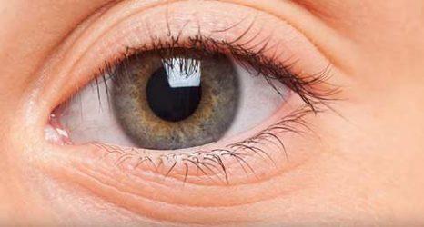 göz altı torbası nasıl geçer
