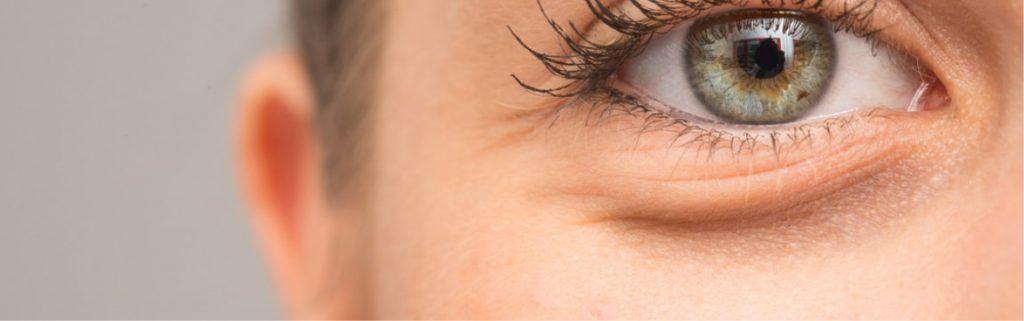 göz çevresi kırışıkları için doğal yöntemler